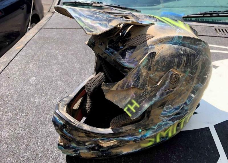 Bike Crashes and Brain Injuries